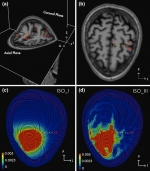 Experimental validation of the influence of white matter anisotropy on the intracranial EEG forward solution.