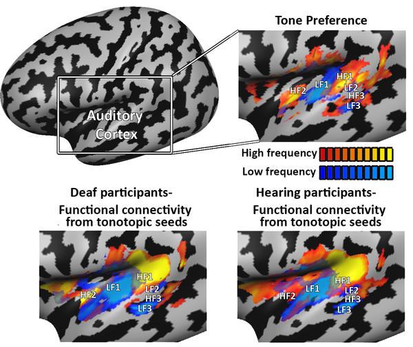 Tonotopic functional connectivity network organization in the deaf
