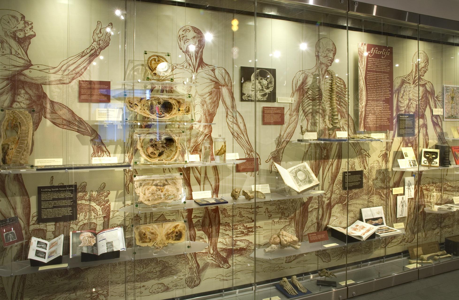 Body of Knowledge: A History of Anatomy (in 3 parts) (2014) | Sara J ...