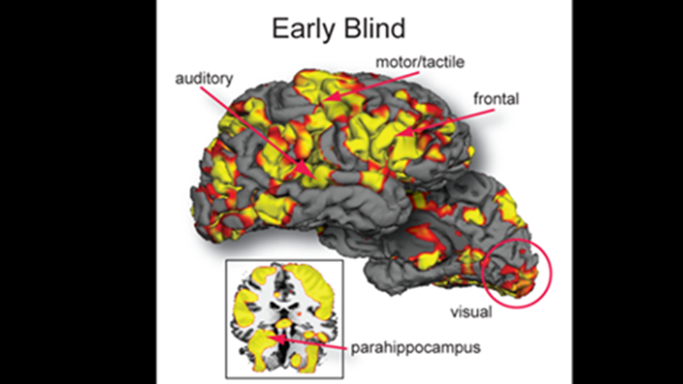 Brain activation in a blind individual revealed by  functional MRI (fMRI) in response to playing the AbES game
