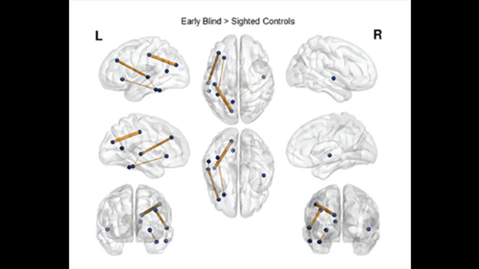 Visualization of enhanced brain (i.e. white matter) connections in the blind compared to sighted individuals.