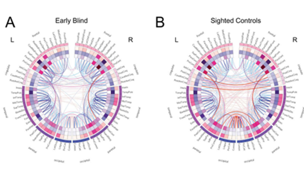 CIRCOS visualizations showing differences in structural and functional connectivity in blind and sighted individuals