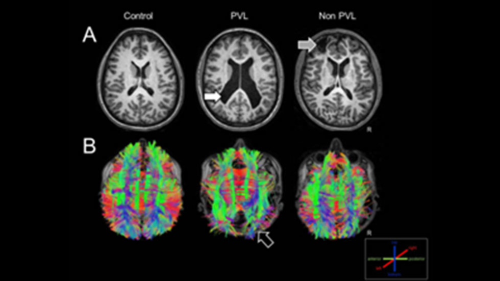 Structural MRI and white matter tractography of a control individual, an individual with CVI born prematurely and another CVI born at term