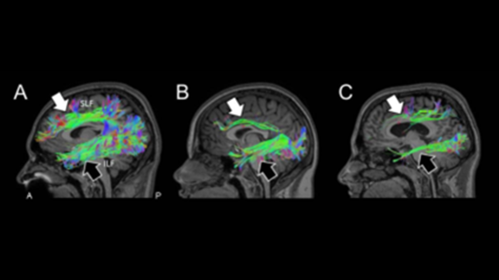 Sagittal view of white matter tractography of the dorsal and ventral visual processing streams revealed with diffusion MRI (HARDI).