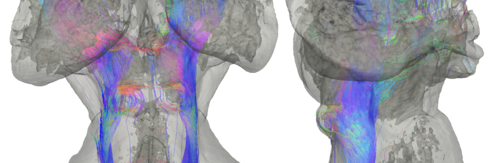 Diffusion MRI tractography of the subcortical auditory pathway in a postmortem human brain